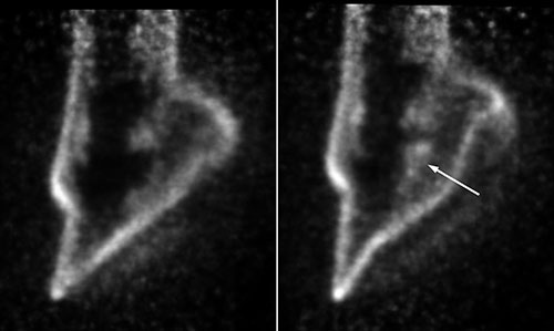 Sagittal PET images through the foot of the normal (left) and lame (right) limb of the horse. The arrow indicates increased signal in the area of the navicular bone of the lame limb due to the presence of a lesion.