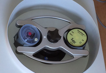 platelet-rich-plasma-centrifuge-360-250