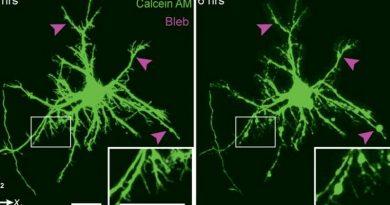 concussion-neurons-800x445