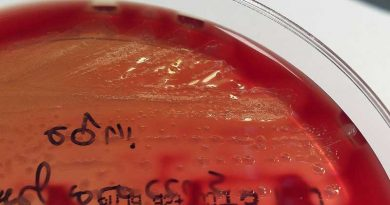Colonies of Streptococcus equi on a blood agar plate. Photo: Stefan Walkowski CC BY-SA 4.0 via Wikimedia Commons