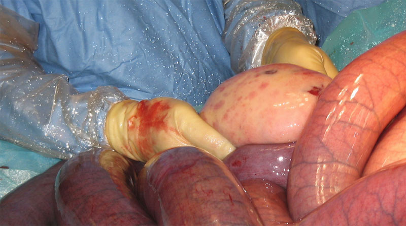Colic surgery for a small intestinal strangulation by a lipoma (fatty mass).The surgeon is holding the lipoma.