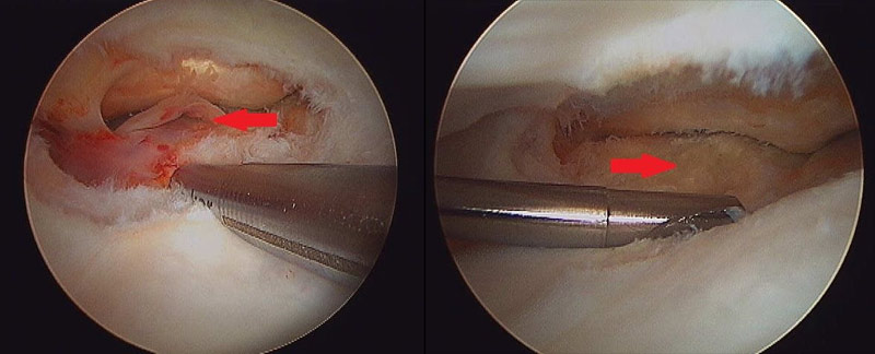 Tear of deep digital flexor tendon in navicular bursa, and at right, the surface of the deep digital flexor tendon after cleanup.