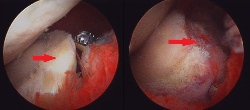 A large prolapsed meniscal tear is shown at left. The image at right shows the post debridement of the torn meniscal tissue.