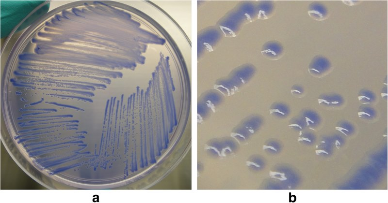 Representative growth of B. mallei. (a) plate view and (b) colony view, on BM agar after 72hours of incubation at 37degrees Celsius. Kinoshita et al. https://doi.org/10.1186/s12917-019-1874-0